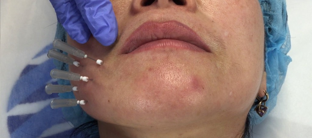 Pic 3_Рис 3 Имплантация биостимулирующих нитей на иглах 29G 40mm в нижнюю треть лица-min